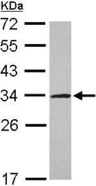 Western blot - Anti-UTP11L antibody (ab101460)