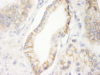 Immunohistochemistry (Formalin/PFA-fixed paraffin-embedded sections) - Anti-KIAA0528 antibody (ab101493)