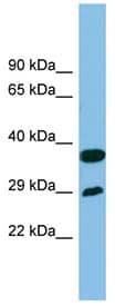 Western blot - Anti-RTP4 antibody (ab102078)