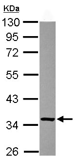 Western blot - Anti-Ketosamine-3-kinase antibody (ab102475)