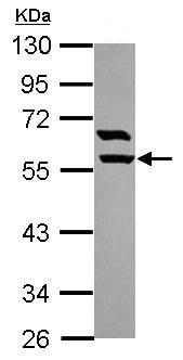 Western blot - Anti-ARHGAP15 antibody (ab102580)