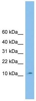 Western blot - Anti-CHCHD1 antibody (ab102640)