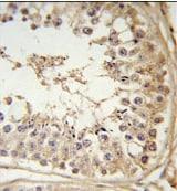 Immunohistochemistry (Formalin/PFA-fixed paraffin-embedded sections) - Anti-FBXL5 antibody (ab102692)