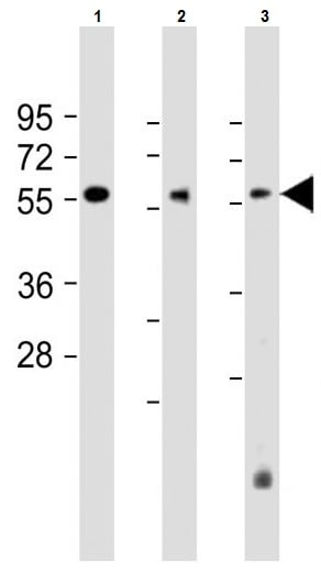 Western blot - Anti-DLL3 antibody (ab103102)