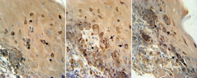 Immunohistochemistry (Formalin/PFA-fixed paraffin-embedded sections) - Anti-TRP2 antibody (ab103463)