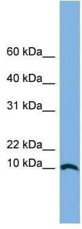 Western blot - Anti-MHF2 antibody (ab103792)