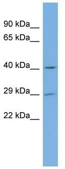 Western blot - Anti-FLJ14154 antibody (ab103800)