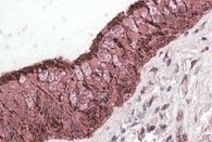 Immunohistochemistry (Formalin/PFA-fixed paraffin-embedded sections) - Anti-ALDH3A1 antibody (ab103895)
