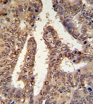 Immunohistochemistry (Formalin/PFA-fixed paraffin-embedded sections) - Anti-TIGD6 antibody (ab104066)