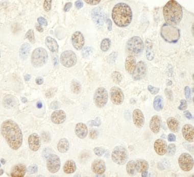 Immunohistochemistry (Formalin/PFA-fixed paraffin-embedded sections) - Anti-NFYC antibody (ab104258)