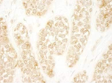 Immunohistochemistry (Formalin/PFA-fixed paraffin-embedded sections) - Anti-Rho guanine exchange factor 16 antibody (ab104261)