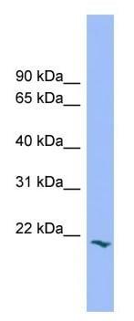 Western blot - Anti-PRRG2 antibody (ab104334)