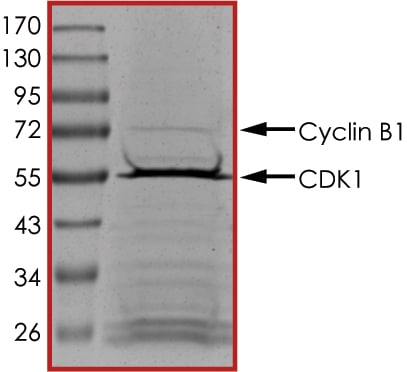 SDS-PAGE - Recombinant human CDK1 + CCNB1 protein (Tagged) (ab104618)