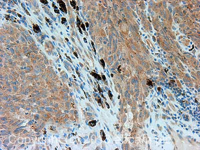 Immunohistochemistry (Formalin/PFA-fixed paraffin-embedded sections) - Anti-alpha COP I antibody (ab104710)