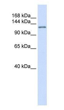 Western blot - Anti-Atrophin 1 antibody (ab104727)