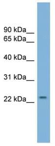 Western blot - Anti-GRPEL1 antibody (ab104783)