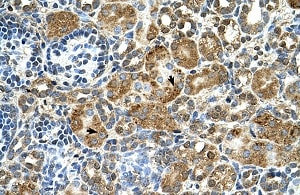 Immunohistochemistry (Formalin/PFA-fixed paraffin-embedded sections) - Anti-Stefin B antibody (ab104798)