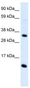 Western blot - Anti-Macrophage Inflammatory Protein 4 antibody (ab104867)