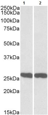 Western blot - Anti-PGP9.5 antibody (ab105031)