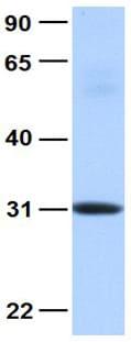 Western blot - Anti-MBNL2 antibody (ab105331)