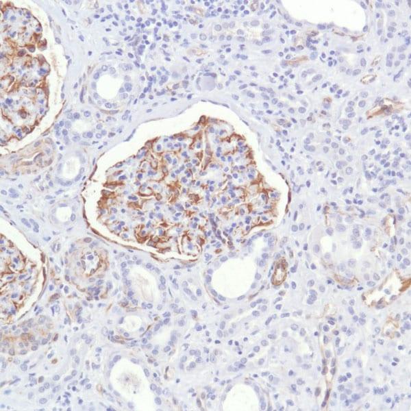 Immunohistochemistry (Formalin/PFA-fixed paraffin-embedded sections) - Anti-Nestin antibody [SP103] (ab105389)