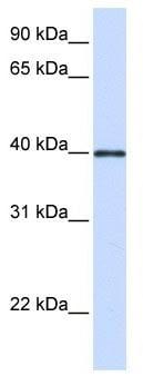 Western blot - Anti-Glycoprotein 2 (zymogen granule membrane) antibody (ab105503)