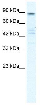 Western blot - Anti-KCNQ2 antibody (ab105511)