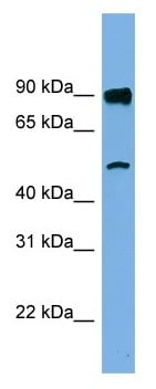 Western blot - Anti-FAM160B1 antibody (ab105558)