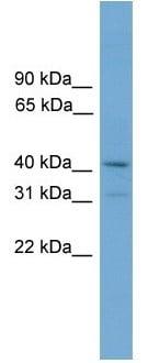 Western blot - Anti-SNAI3 antibody (ab105604)