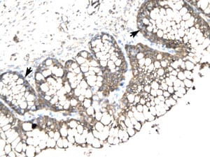 Immunohistochemistry (Formalin/PFA-fixed paraffin-embedded sections) - Anti-SLC17A2 antibody (ab105638)