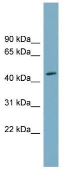 Western blot - Anti-FAM53C antibody (ab105679)