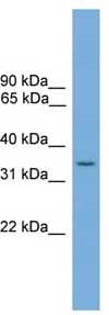 Western blot - Anti-SLC35A4 antibody (ab105817)