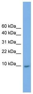 Western blot - Anti-KRTAP23-1 antibody (ab105949)