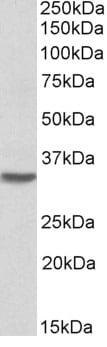 Western blot - Anti-HOXC8 antibody (ab106252)