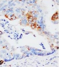 Immunohistochemistry (Formalin/PFA-fixed paraffin-embedded sections) - Anti-GST3 / GST pi antibody (ab106268)