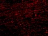 Immunocytochemistry/ Immunofluorescence - Anti-CLIP170 antibody (ab106524)