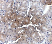 Immunohistochemistry (Formalin/PFA-fixed paraffin-embedded sections) - Anti-AP2M1 antibody (ab106542)