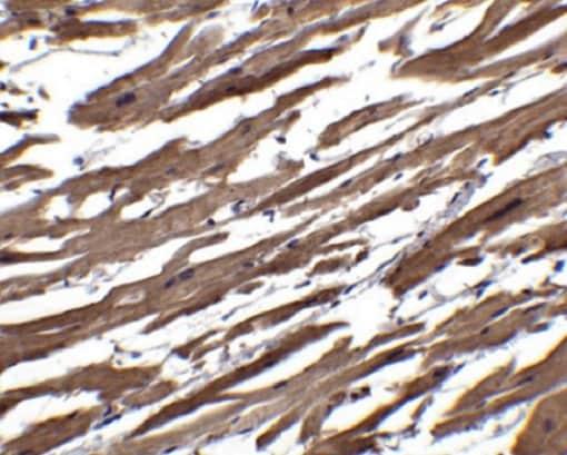 Immunohistochemistry (Formalin/PFA-fixed paraffin-embedded sections) - Anti-RSPO1 antibody (ab106556)
