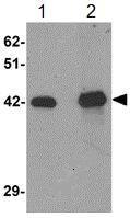 Western blot - Anti-SLC39A12 antibody (ab106570)