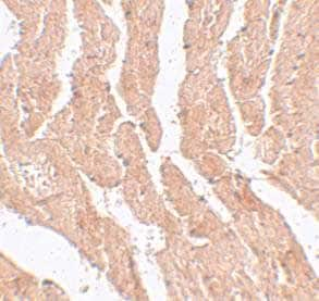 Immunohistochemistry (Formalin/PFA-fixed paraffin-embedded sections) - Anti-LZTR1 antibody (ab106655)