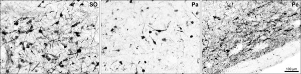 Immunohistochemistry (Frozen sections) - Anti-Tyrosine Hydroxylase antibody (ab106806)