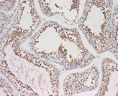 Immunohistochemistry (Formalin/PFA-fixed paraffin-embedded sections) - Anti-Dishevelled / Dvl1 antibody (ab106844)