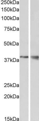 Western blot - Anti-Wnt9b antibody (ab106928)