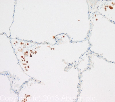Immunohistochemistry (Formalin/PFA-fixed paraffin-embedded sections) - Anti-PDGF Receptor beta antibody (ab107169)