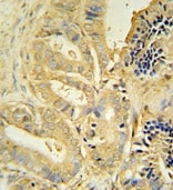Immunohistochemistry (Formalin/PFA-fixed paraffin-embedded sections) - Anti-TLL1 antibody (ab107743)
