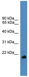 Western blot - Anti-UBL4A antibody (ab108060)