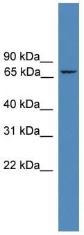 Western blot - Anti-ZNF304 antibody (ab108151)
