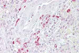 Immunohistochemistry (Formalin/PFA-fixed paraffin-embedded sections) - Anti-FRZB antibody (ab108169)