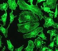 Immunocytochemistry/ Immunofluorescence - Anti-alpha Actinin 4 antibody [EPR2533(2)] (ab108198)