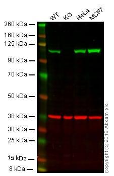 Western blot - Anti-alpha Actinin 4 antibody [EPR2533(2)] (ab108198)